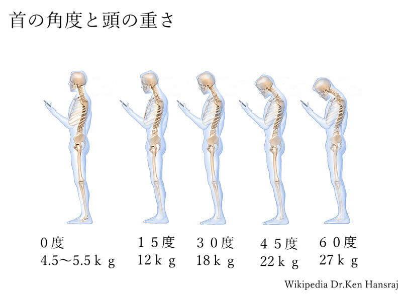 札幌頚椎ヘルニア整体 首の角度と頭の重さ画像
