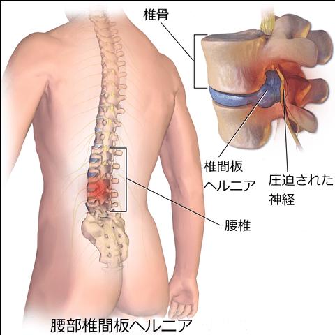 札幌腰痛整体治療院 椎間板ヘルニア画像