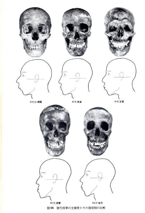 札幌整体治療院 谷井治療室 頭蓋骨画像