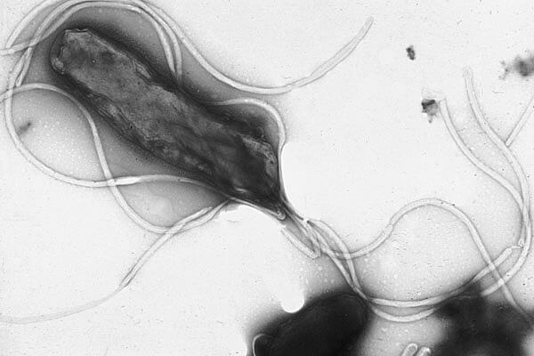 ピロリ菌画像