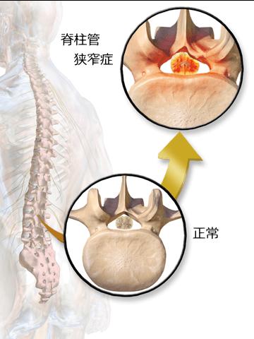 脊柱管狭窄症 画像