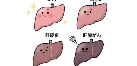 脂肪肝から肝臓がん
