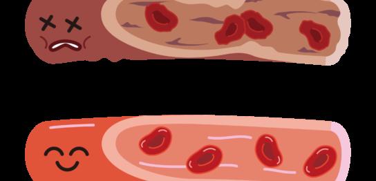 動脈硬化イラスト