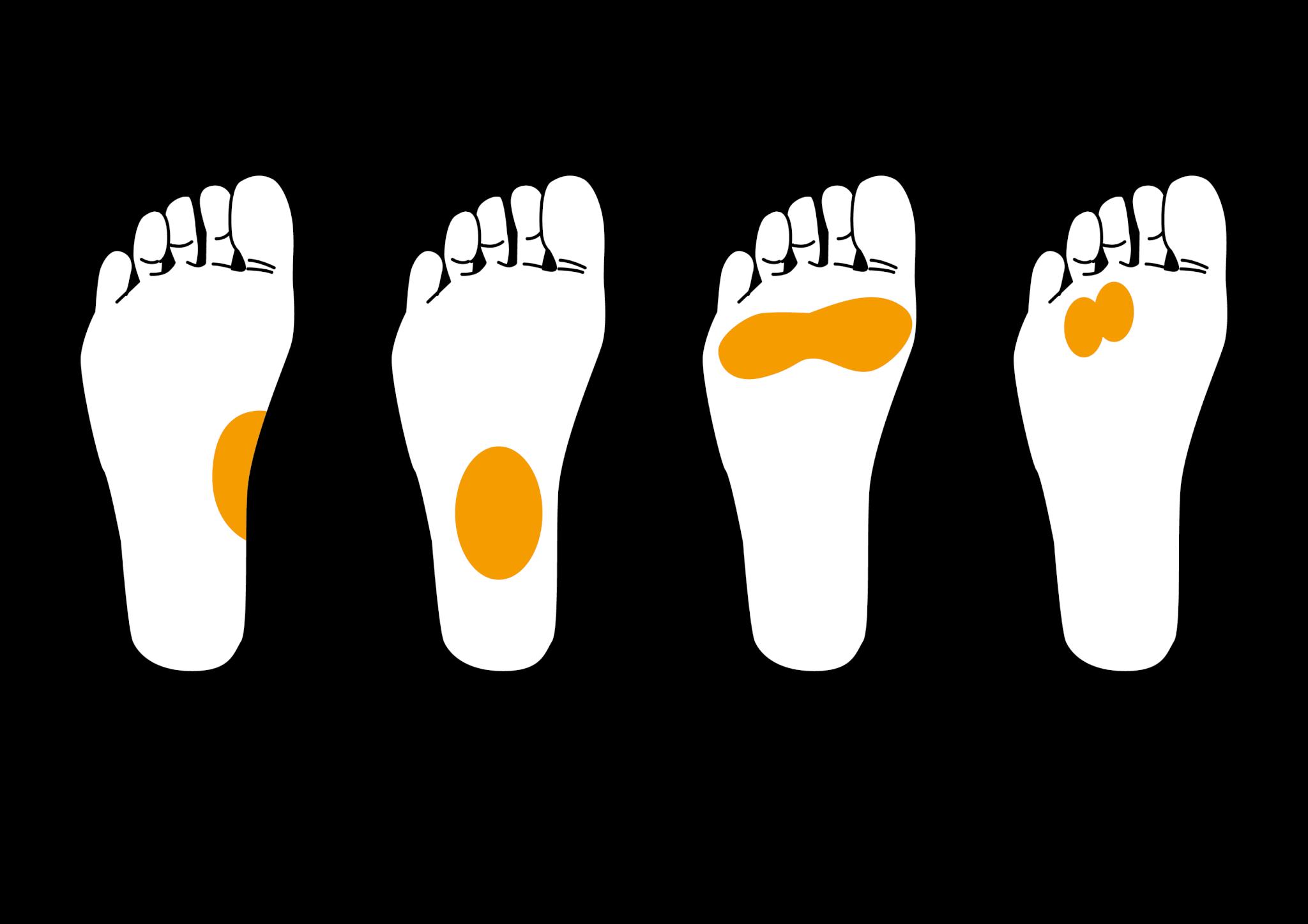足の裏の病気